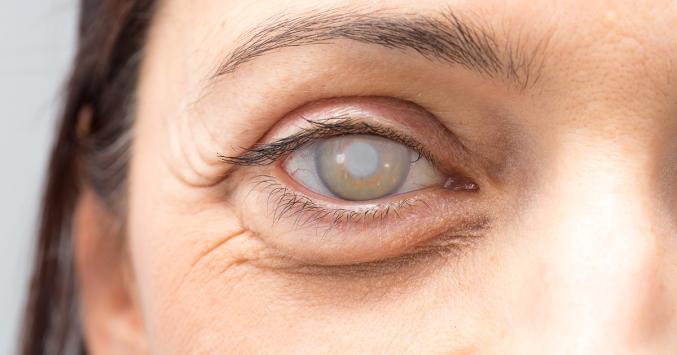 Understanding the Symptoms of Cataract