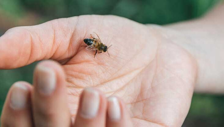A Bee Sting Remedy that Reduces the Severity of Anaphylactic Shock
